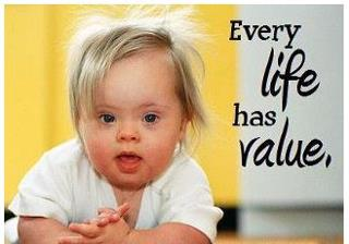 Down Syndrome- Every Life Has Value