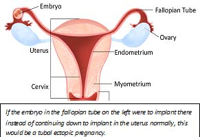 Ectopic Pregnancy Diagram